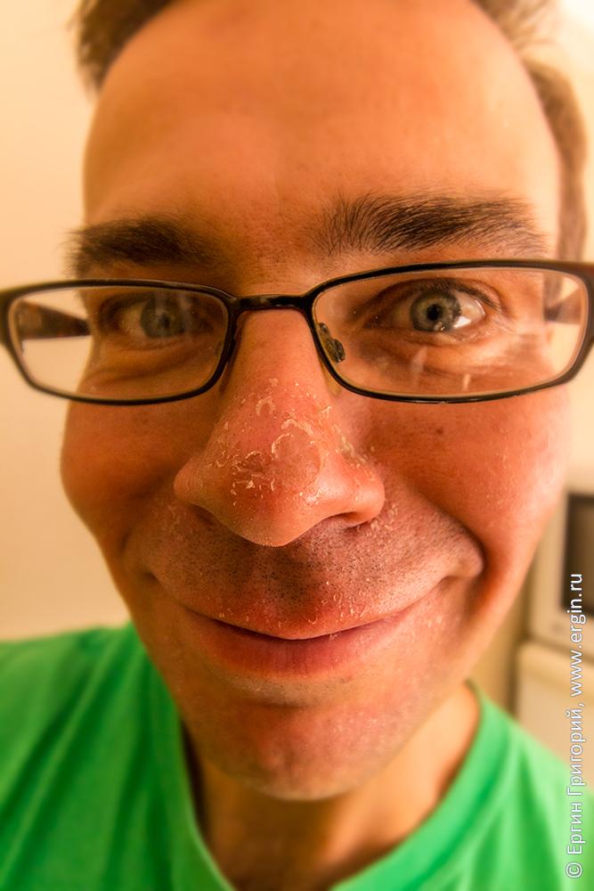 Нос облез от солнца загар на лице