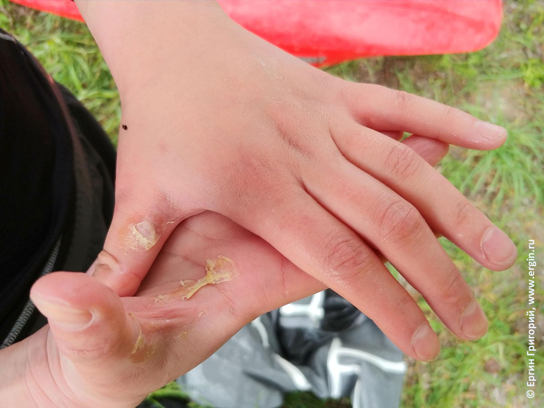 Руки каякера с мозолями от весла